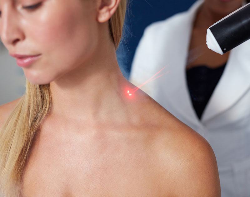 Close-up of woman having laser treatment on her shoulder